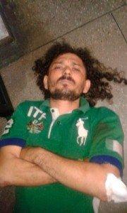"""""""Gambá"""" também ficou ferido, mas os tiros atingiram somente suas pernas"""