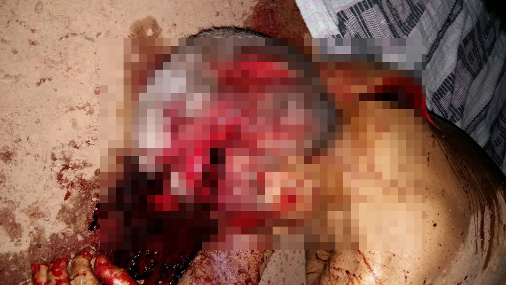 Cenas Fortes:Foragido mata tio a golpes de facão e ameaça crianças de 1 e 5 anos de idade