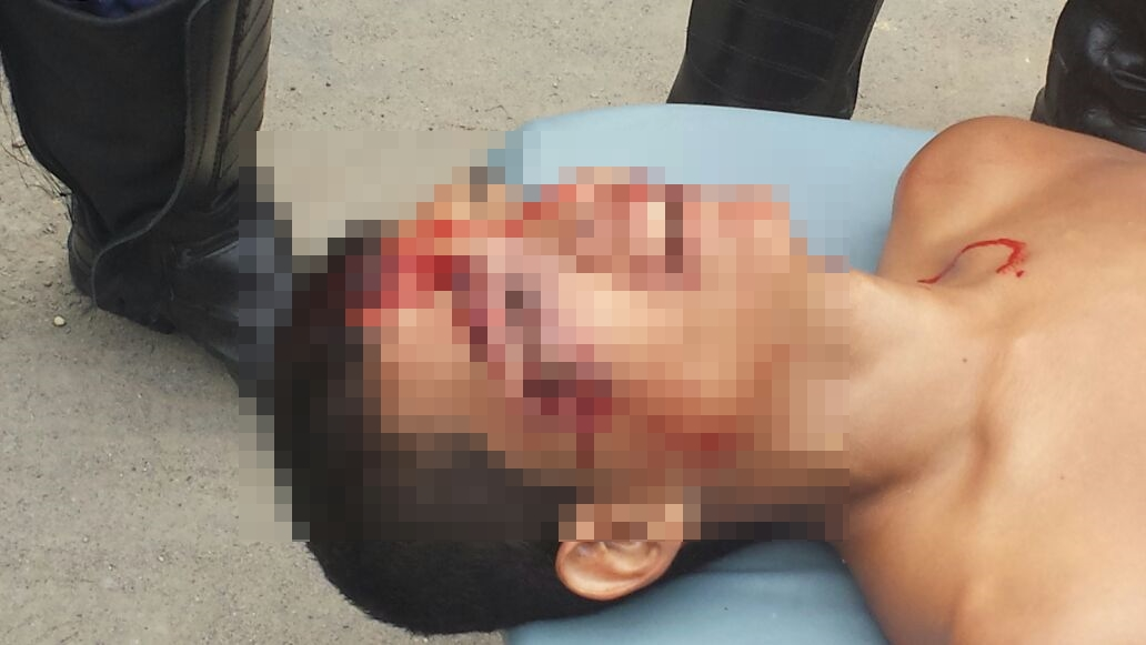 Imagens Fortes: Assaltante são baleados ao tentar roubar carro de policial na Zona Norte
